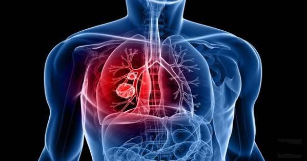 santé pulmonaire