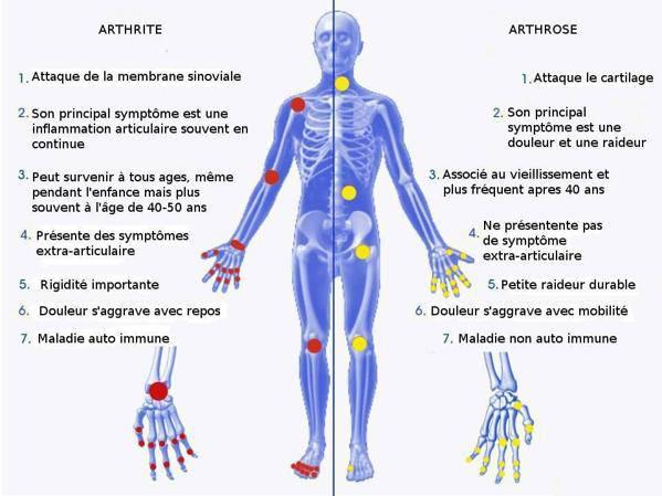 arthrite dans les mains
