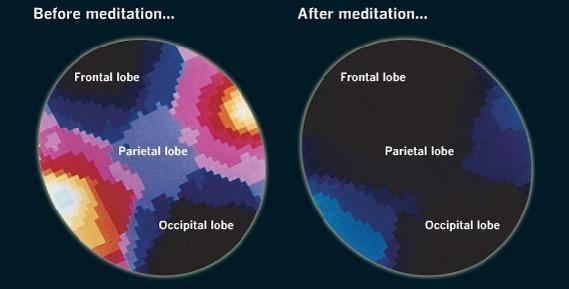 méditation modifie le cerveau