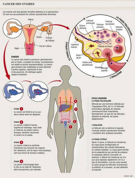 cancer de l ovaire
