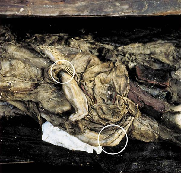momie de 2500 ans