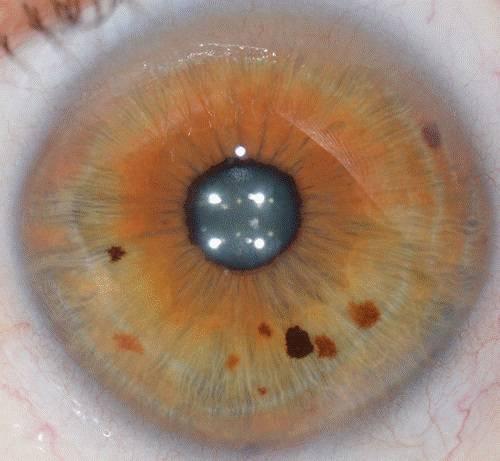 structure-de-votre -iris (2)