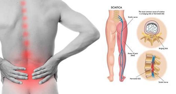 douleur sciatique chronique