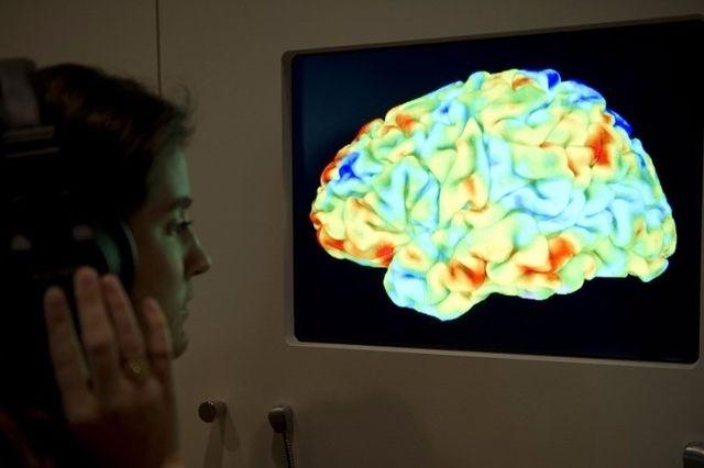 (Image prétexte) En observant le cerveau, les scientifiques zurichois ont pu établir un comportement différencié selon le genre. (Lundi 9 octobre 2017)