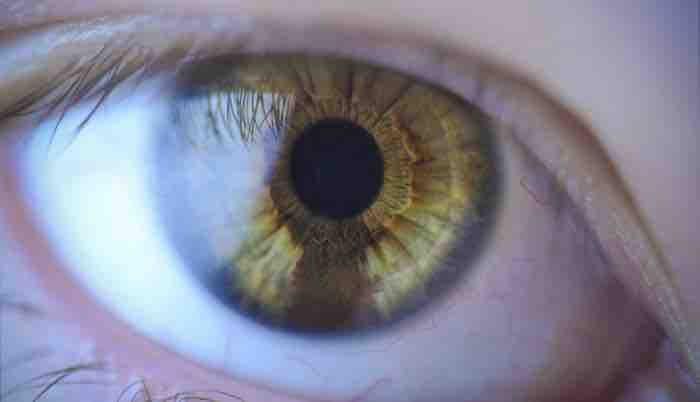 tache de naissance dans l'oeil